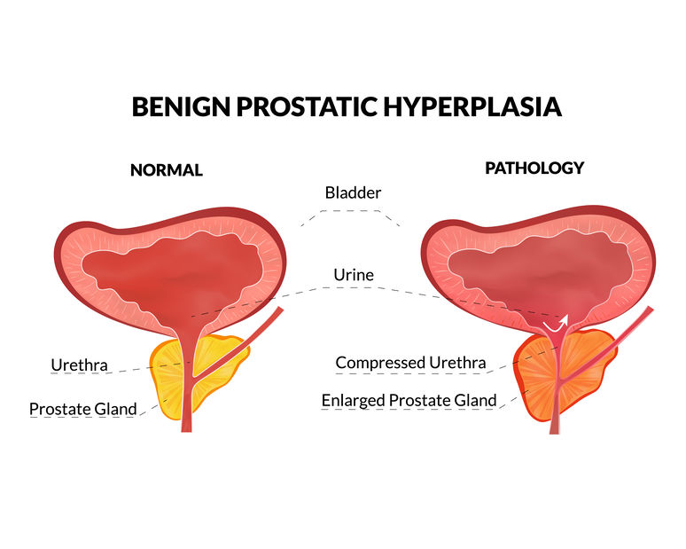 Prostate Enlargement (Benign prostatic hyperplasia)