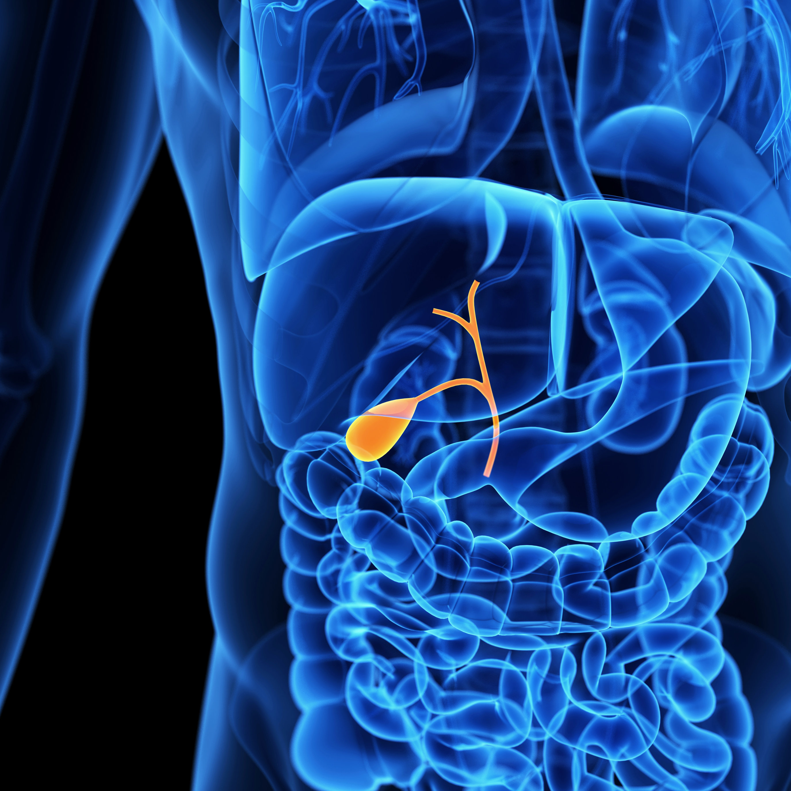 Complications of Gallstones (Gallbladder stones)
