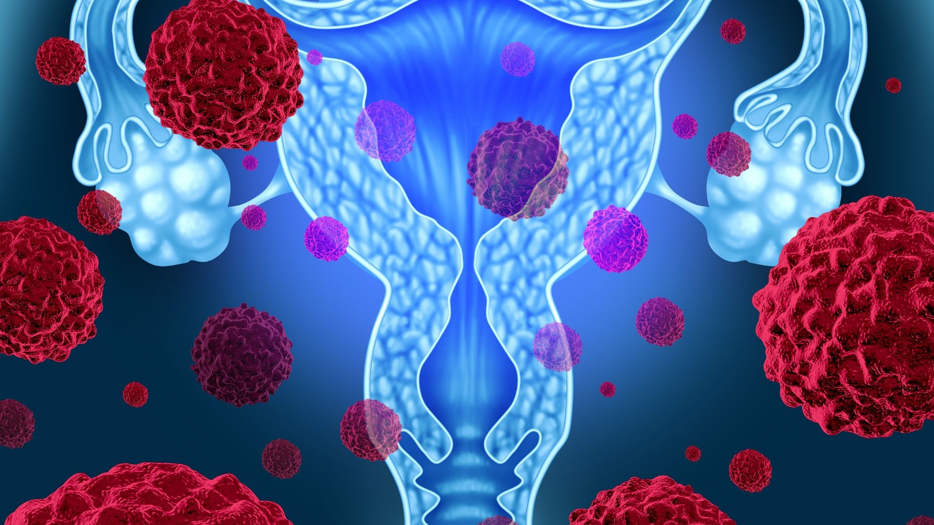 uterine fibroid treatment