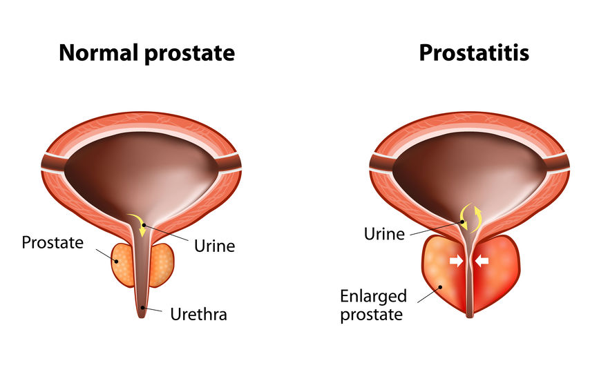 Normal Prostate Vs Enlarged Prostate
