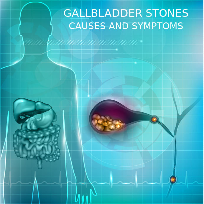 Gallstones Causes and Symptoms