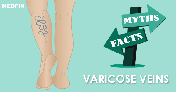 Myths and Facts about varicose veins that you need to know