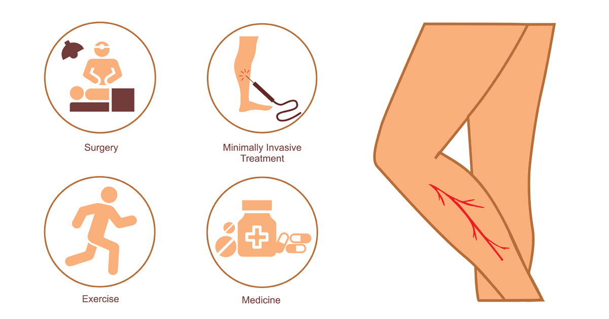An Image showing varicose veins, surgery for it, laser treatment, medicine and exercises.