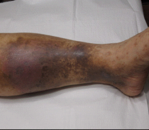 Skin Discoloration: Varicose Veins Stage 3
