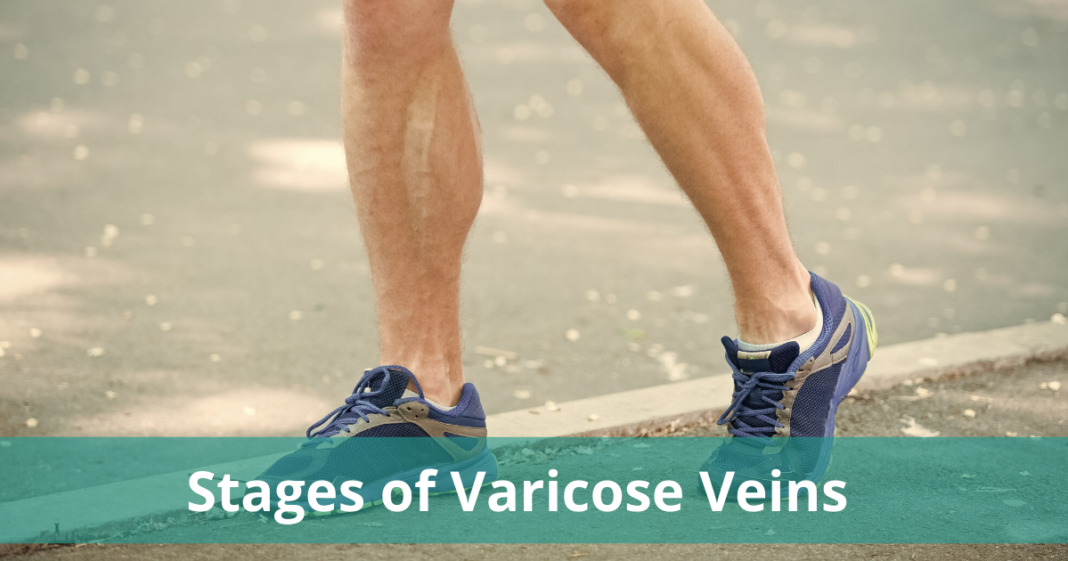 Stages_of_Varicose_Veins