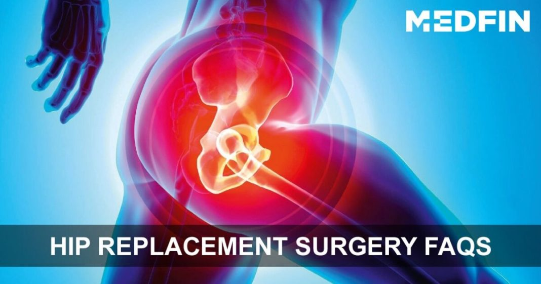 Hip_Replacement_FAQs